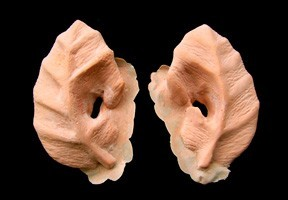 Dryad Ears